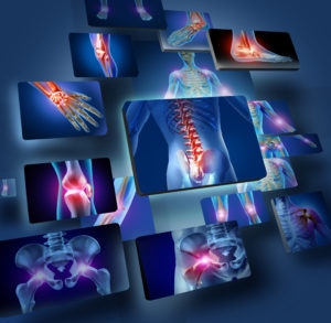 Human joints concept with the skeleton anatomy of the body with a group of panels of sore joints glowing as a pain and injury or arthritis illness symbol for health care and medical symptoms.