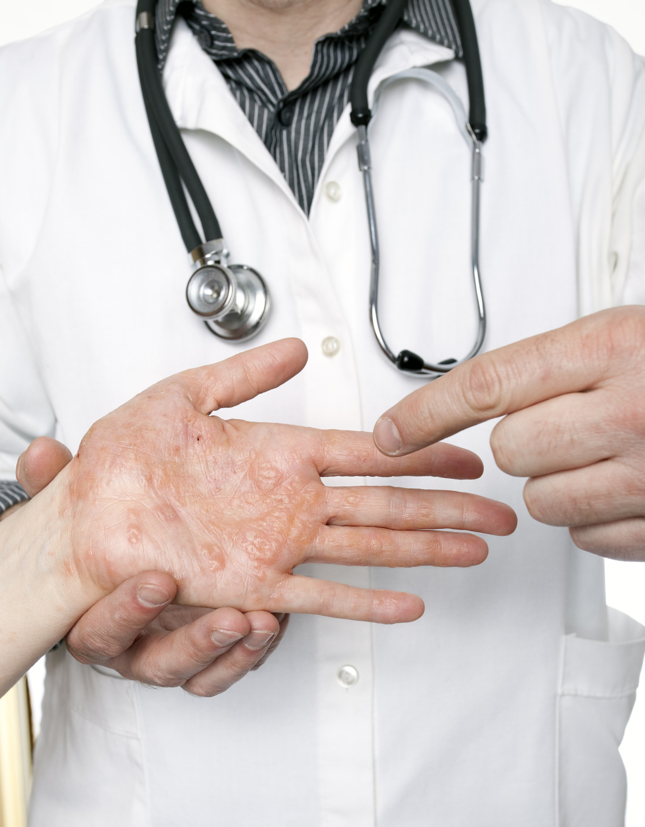 eczema injection treatment adult